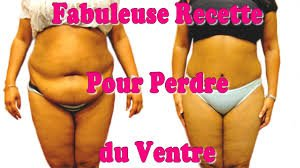perdre du ventre liposuccion